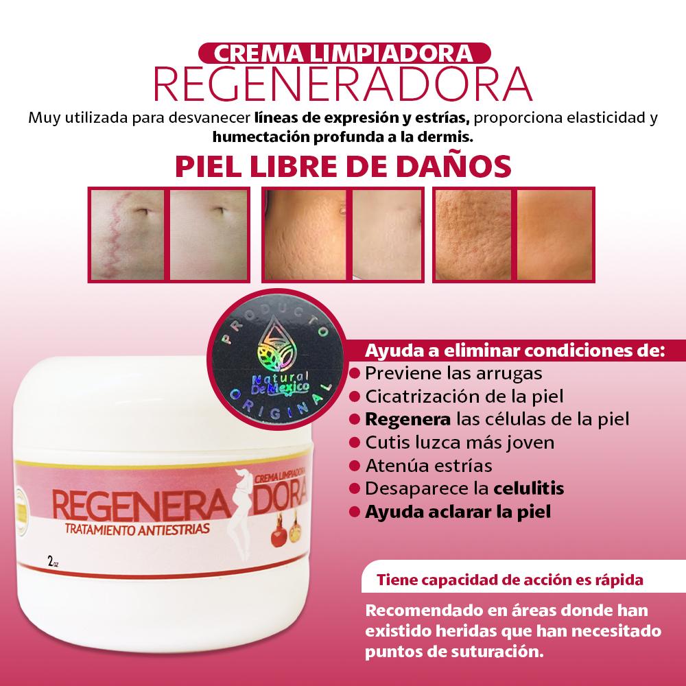 Crema REGENERADORA – Tratamiento Antiestrias